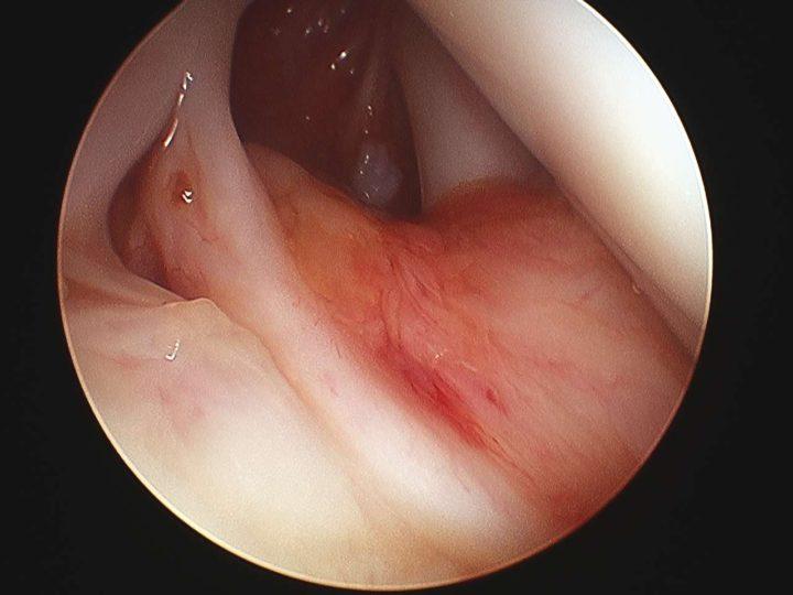 Lesión de SLAP. Lesión labrum superior hombro.Hombro doloroso