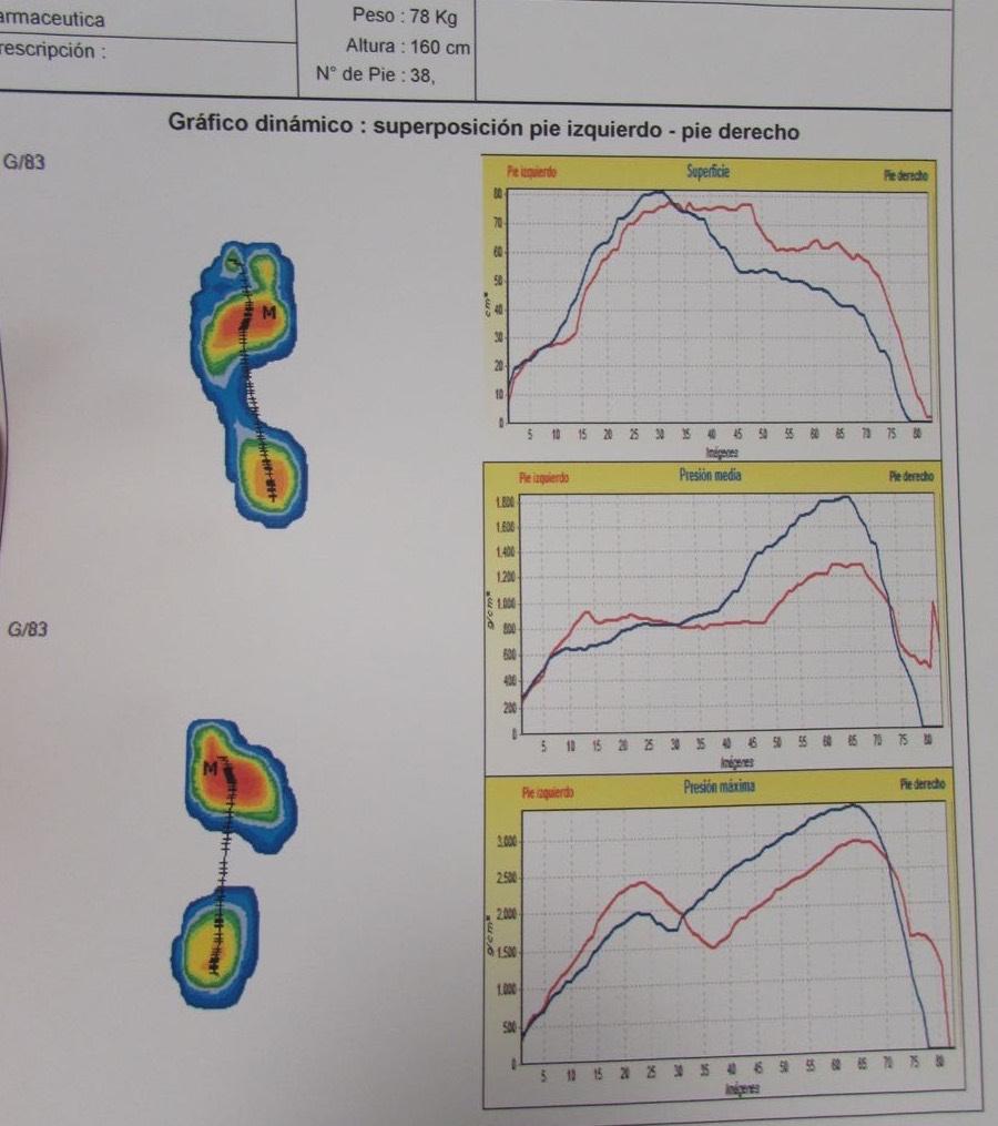 Estudio biomecanico de la marcha for Estudio de pisada