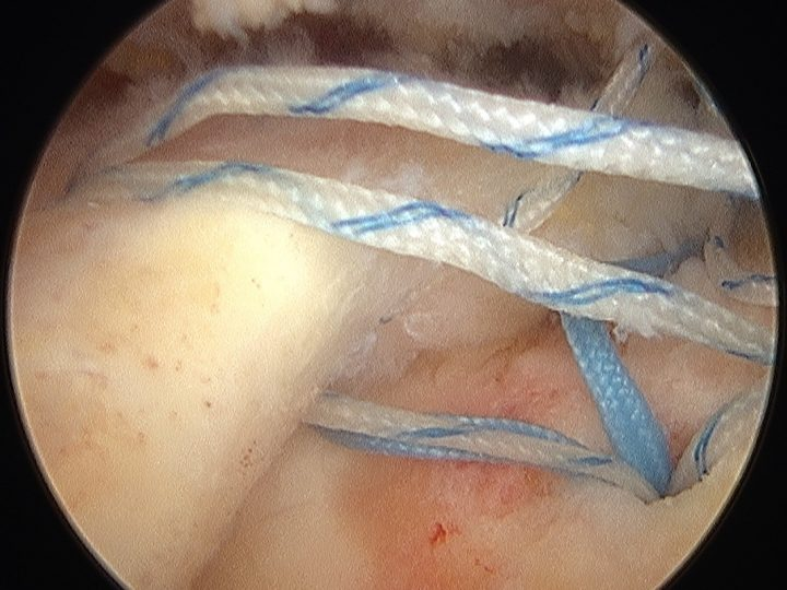 sistematica sutura artroscopica subescapular, supraespinoso e infraespinoso