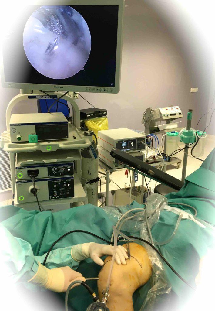Rotura del Ligamento Cruzado Anterior. Ligamentoplastia