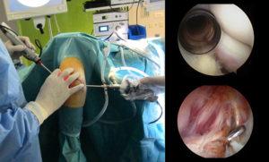 artroscopia codo vision interna