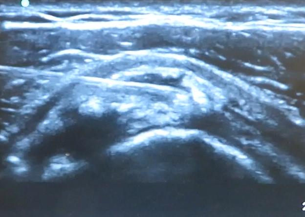 tendinitis calcica puncion aspiracion Barbotaje SportMe