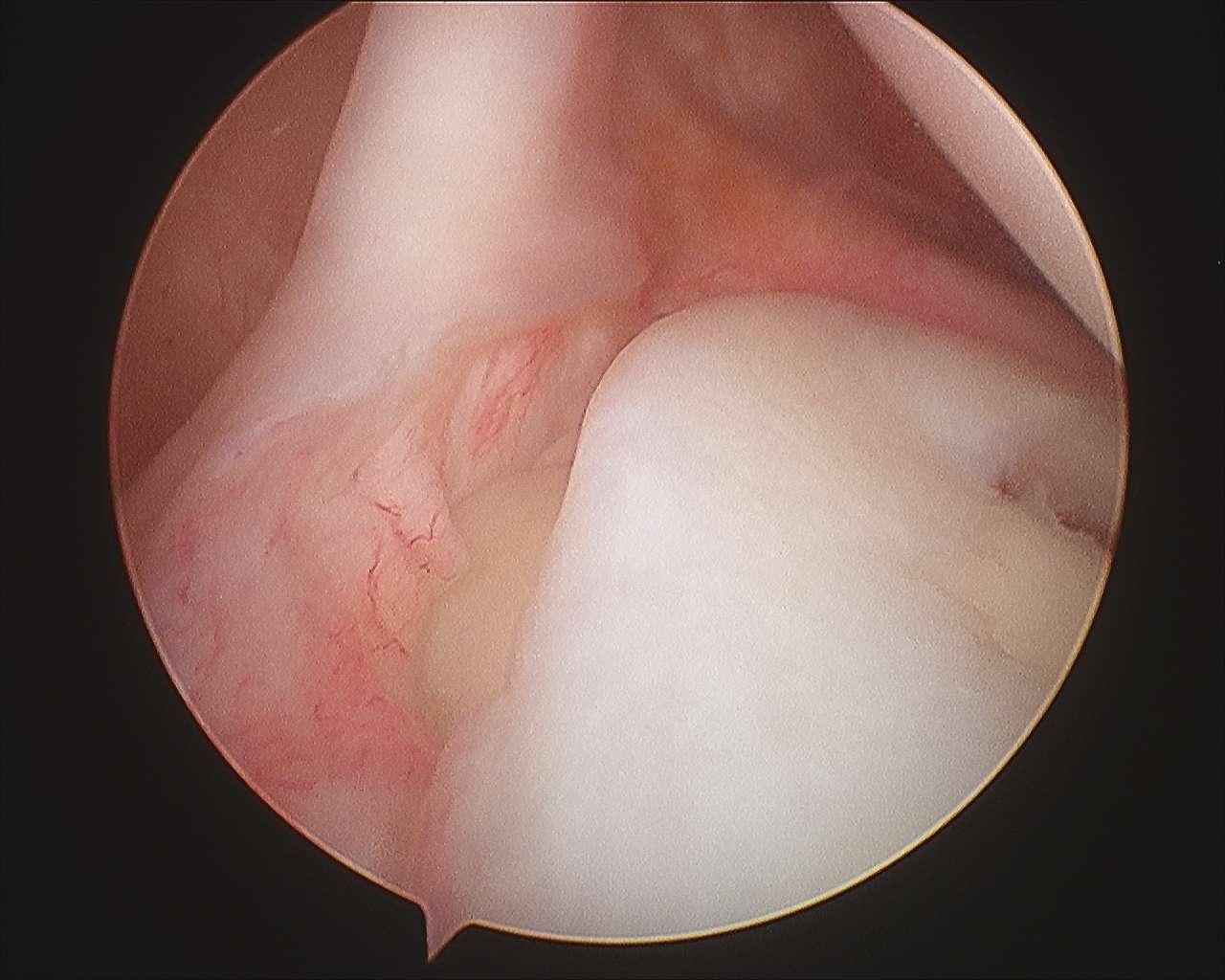 Tipos de Lesion de Slap