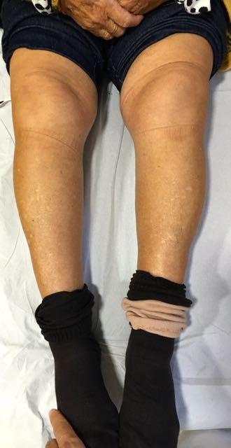Genu Varo o rodillas arquedas
