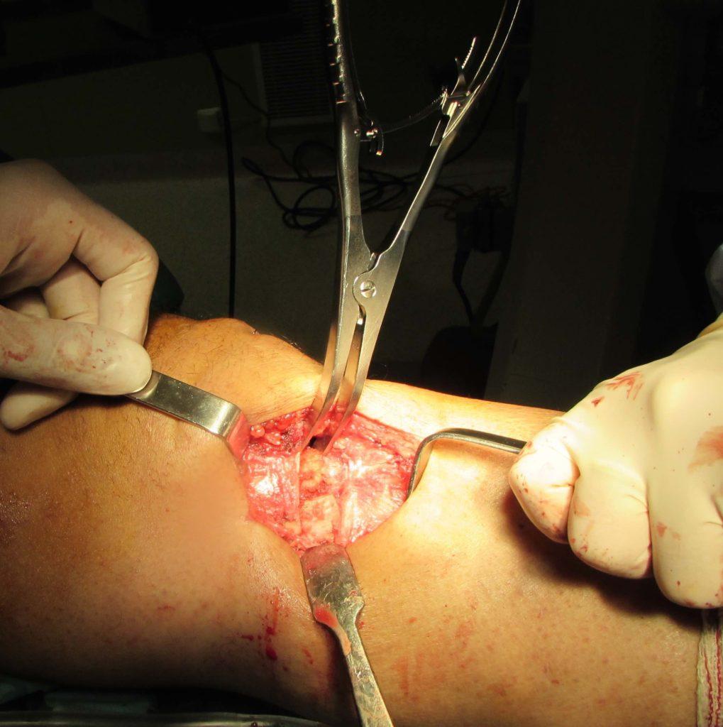 osteotomia tibia con injerto sportme