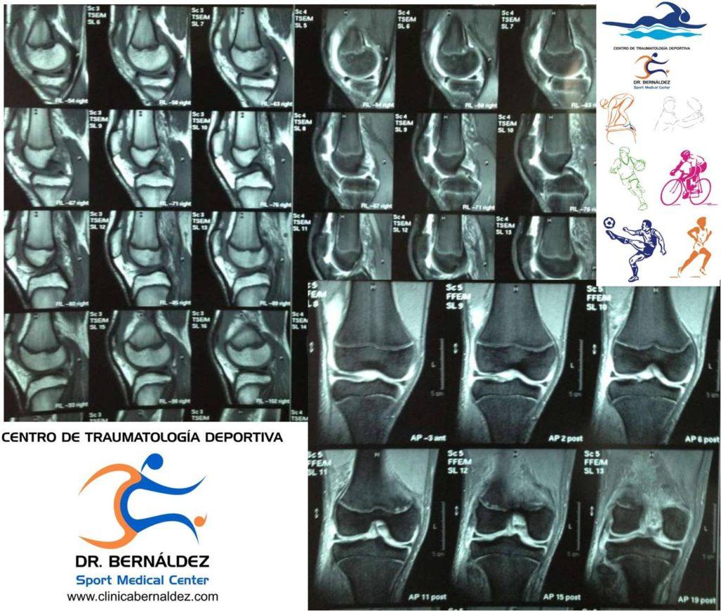 Resonancia Magnética. Ideal en Traumatología Deportiva