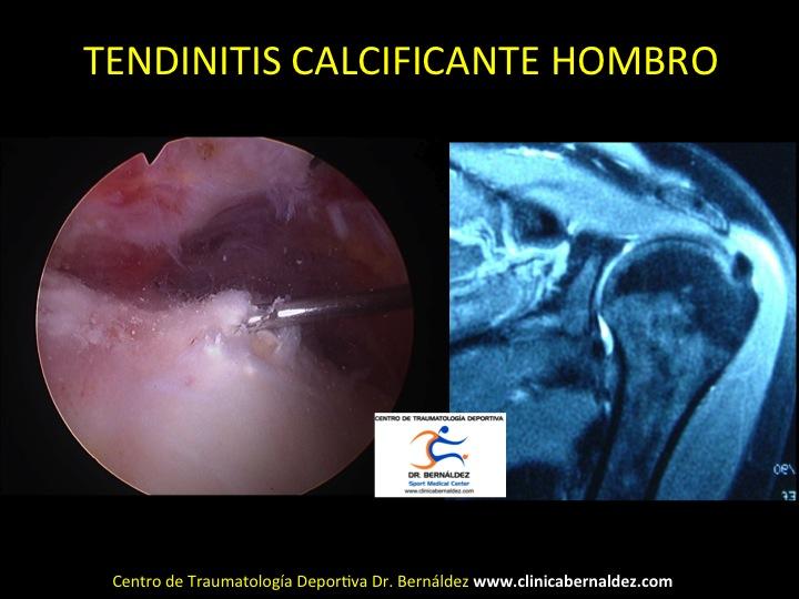 TENDINITIS CALCIFICANTE HOMBRO DR BERNALDEZ