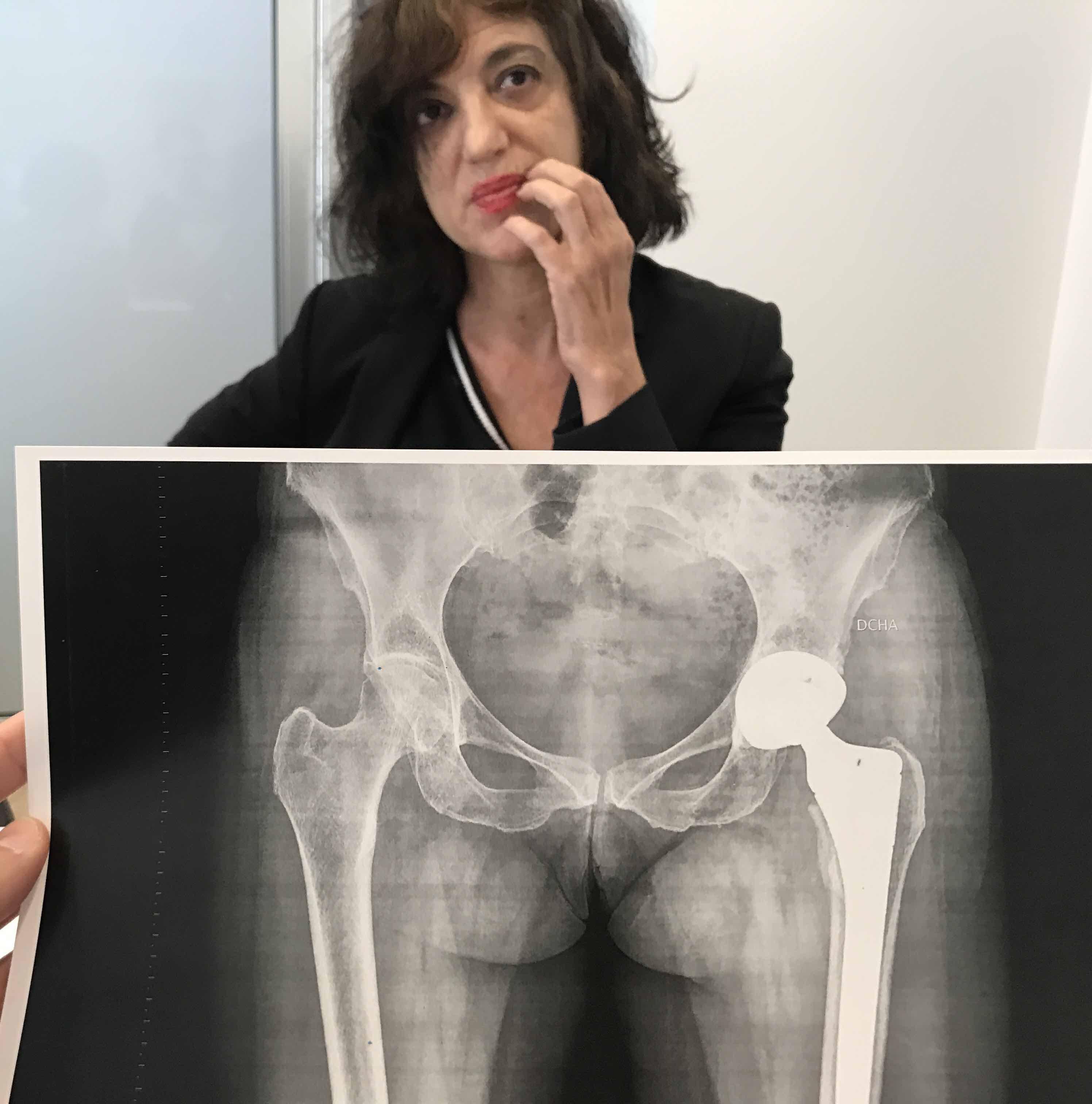 Dudas sobre una operación de Prótesis de Cadera