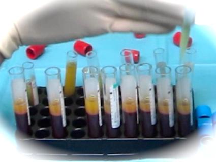 Plasma Rico en Plaquetas en Tendinitis