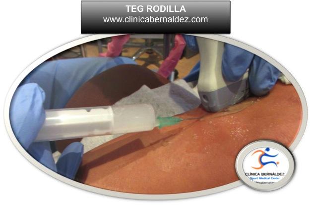 LA TERAPIA ECOGUIADA TEG. Tratamiento de Tendones, Músculos y Ligamentos
