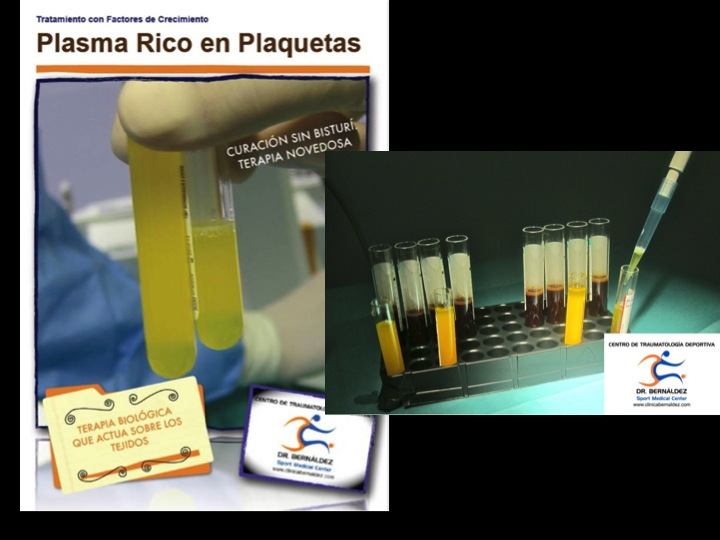 Plasma Rico en Plaquetas en artrosis