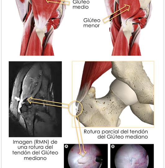Tendinitis glúteos. Rotura de los tendones glúteos medio y menor