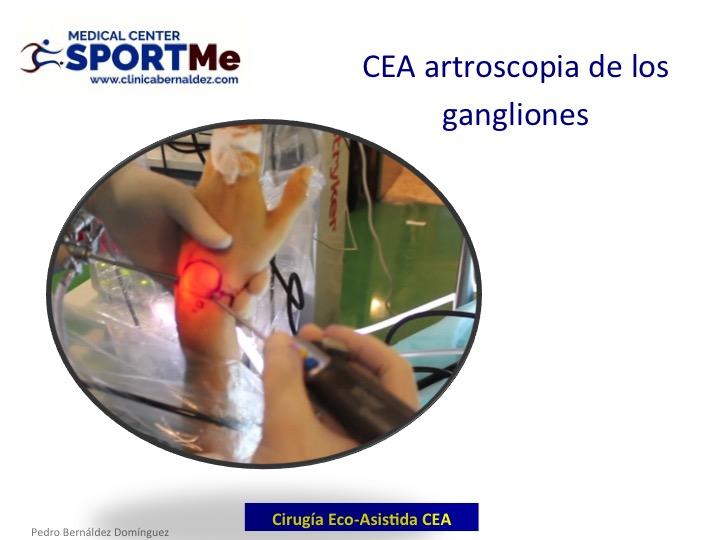 Cirugia Eco-Asistida (CEA): Un nuevo concepto
