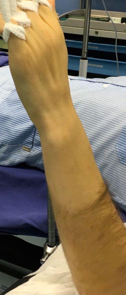 Fibrocartilago Triangular. Dolor en borde cubital muneca 1