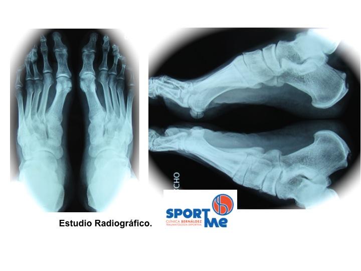 Enfermedad Hadlung Radiografia Sportme Sevilla