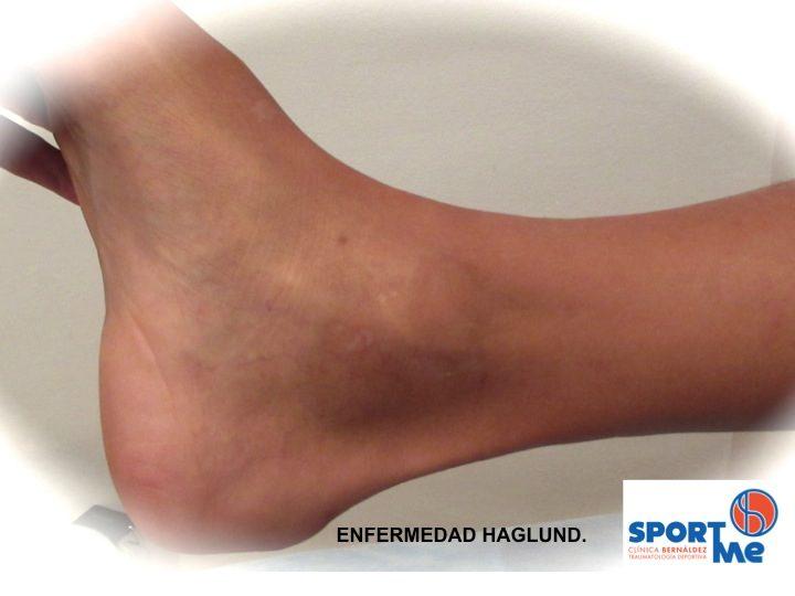 Enfermedad de Haglund, dolor en tendón de Aquiles, Aquilodinia
