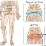 artritis-SPORTME