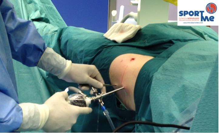 Choque o Pinzamiento femoro-acetabular- CAM y PINZER