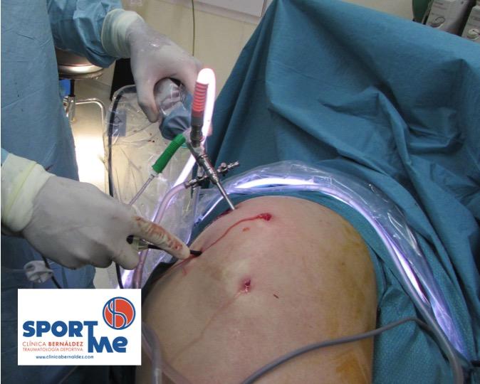 Elena,una Paciente con Trocanteritis, Operada con Éxito por Endoscopia