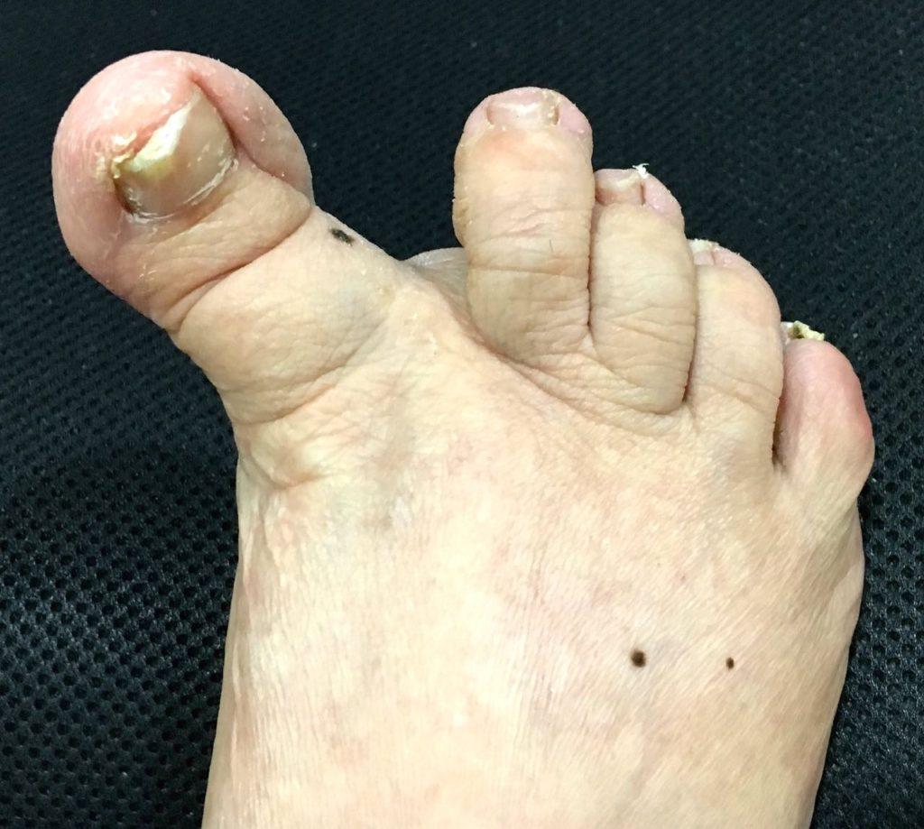 artrodesis-parcial-pie-1