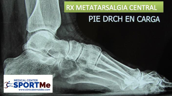 RX METATARSALGIA DR BERNALDEZ.