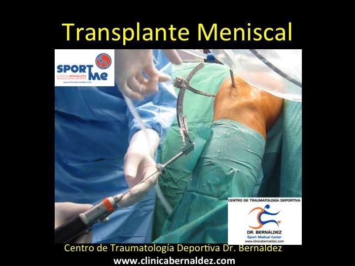 Pioneros en el trasplante meniscal de rodilla