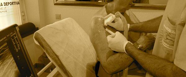 Paciente infiltrado con PRP, para su Bursitis de hombro