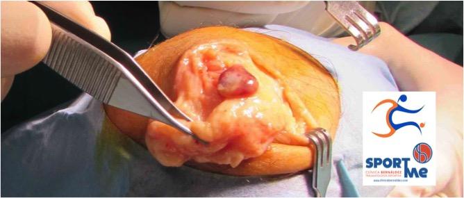 Cirugia de las bursitis