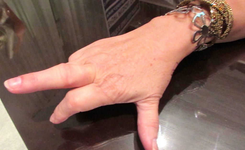 Artrosis de mano Sevilla. Dolor de dedos y debilidad, como mejorarla