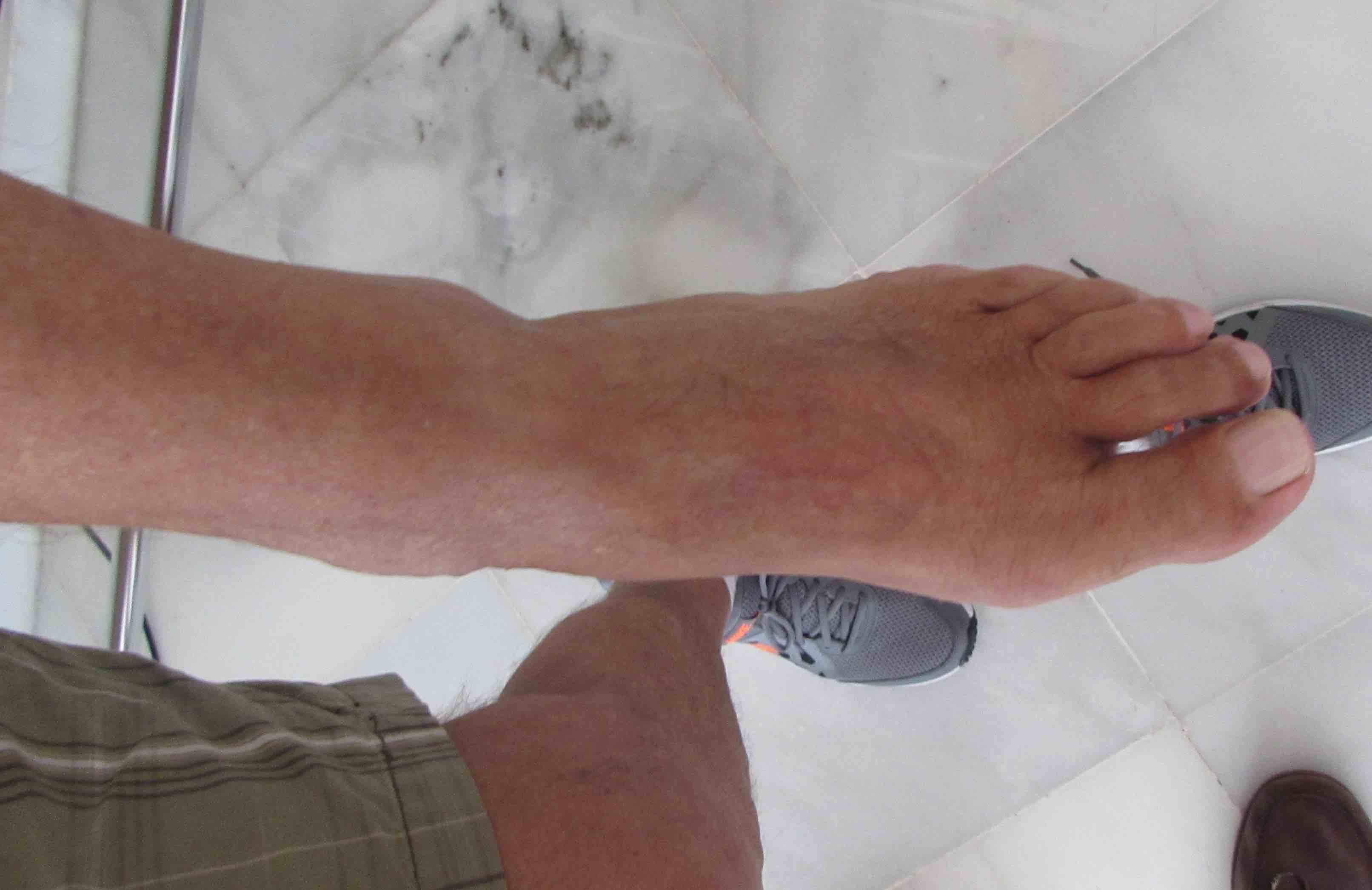 Testimonio de secuela de fractura del pie curada tras una infiltración