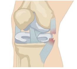rotura ligamento lateral interno rodilla