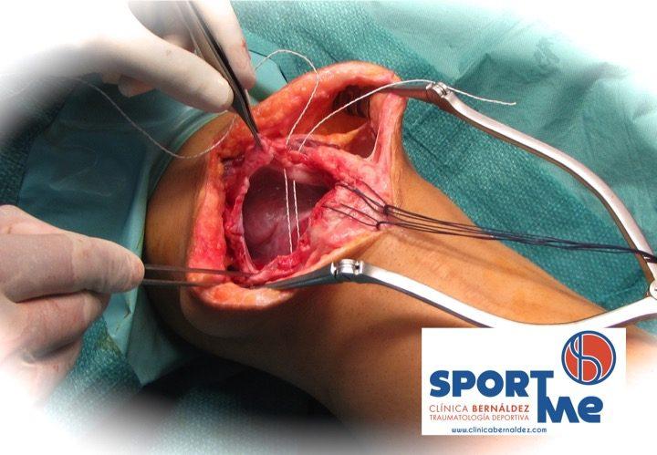 Rotura del Tendón del Cuádriceps o Cuadricipital