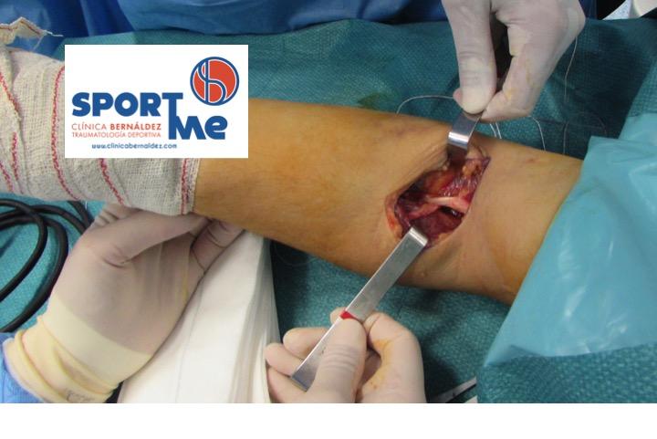 Rotura del Tendón Distal del Bíceps.Reparación quirúrgica.
