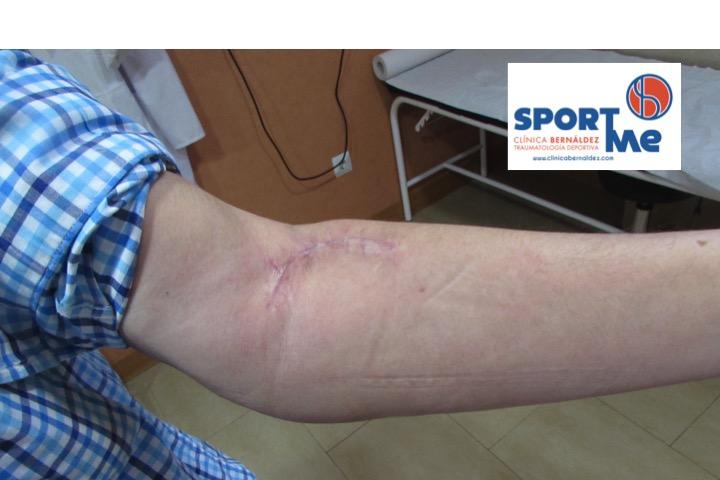 Resultado de la Cirugía del Tendón Distal del Bíceps