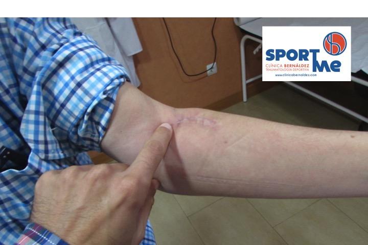 Lugar de Inserción Restaurado tras la Cirugía del Tendón Distal del Bíceps
