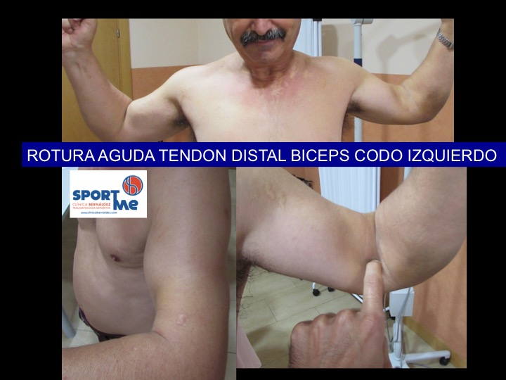 CLINICA ROTURA BICEPS CODO Sportme