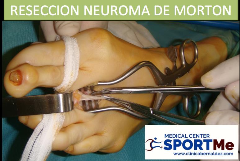 RESECCION NEUROMA DE MORTON SPORTME.