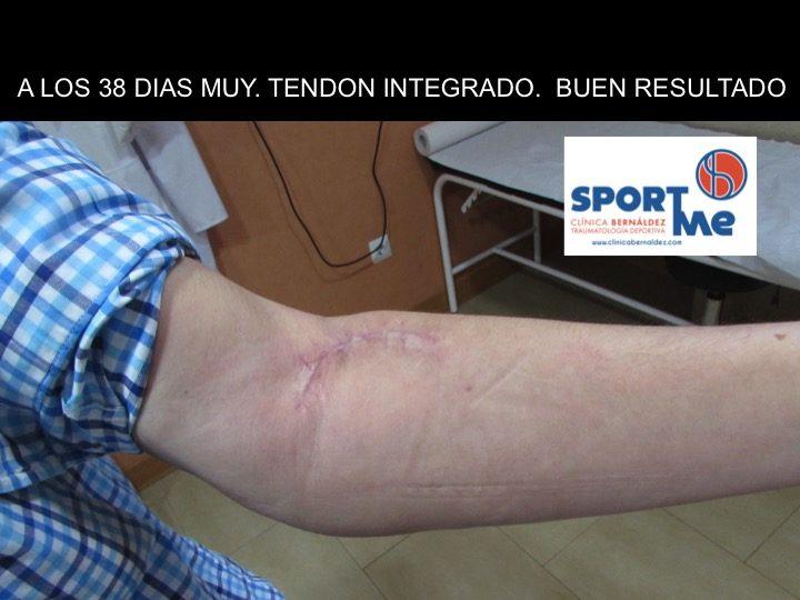 Rotura del TendÓn del biceps braquial (codo)