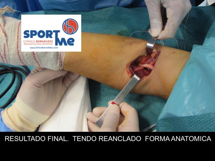 RESULTADO FINAL REPARACION ROTURA BICEPS CODO DR BERNALDEZ
