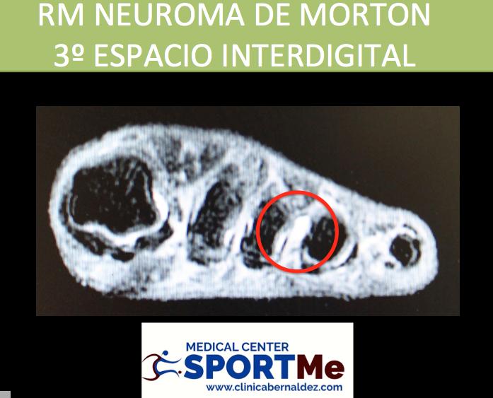RM NEUROMA DE MORTON SPORTME