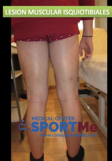 Tratamiento biológico de lesiones musculares. Recuperacion precoz