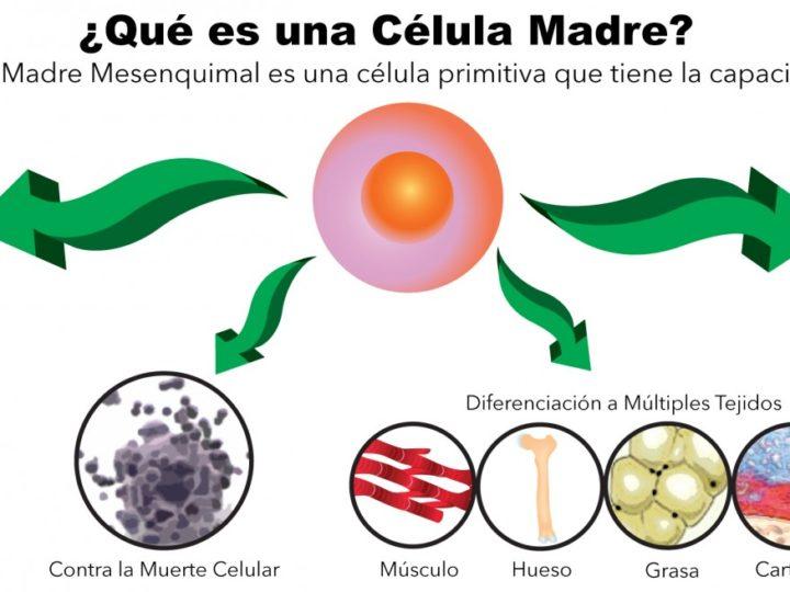 Terapia Celular en el tratamiento de la artrosis de rodilla.Las células Madre.