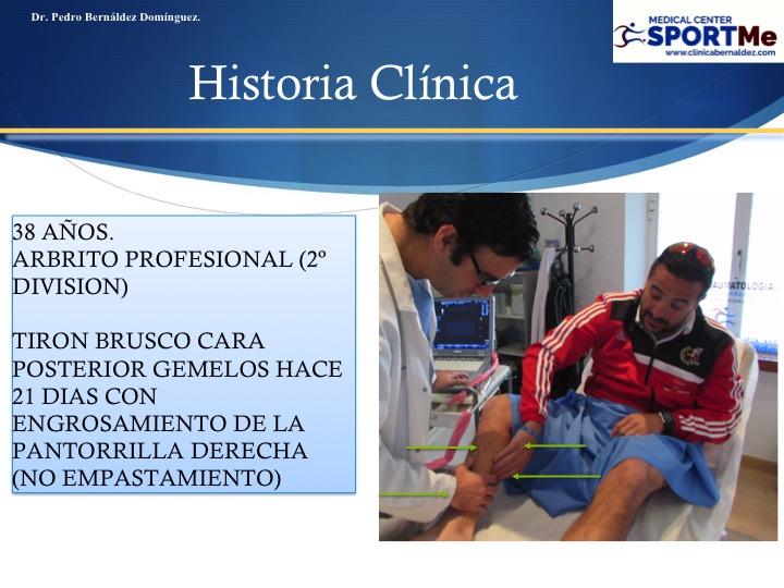 Diapositiva112