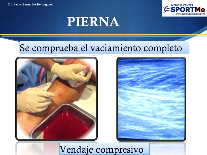 Diapositiva122
