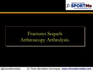 Secuela Fractura Artrolisis artroscopica SportMe