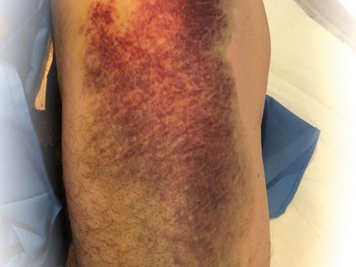 Lesiones musculares. Rotura muscular, rotura fibrilar