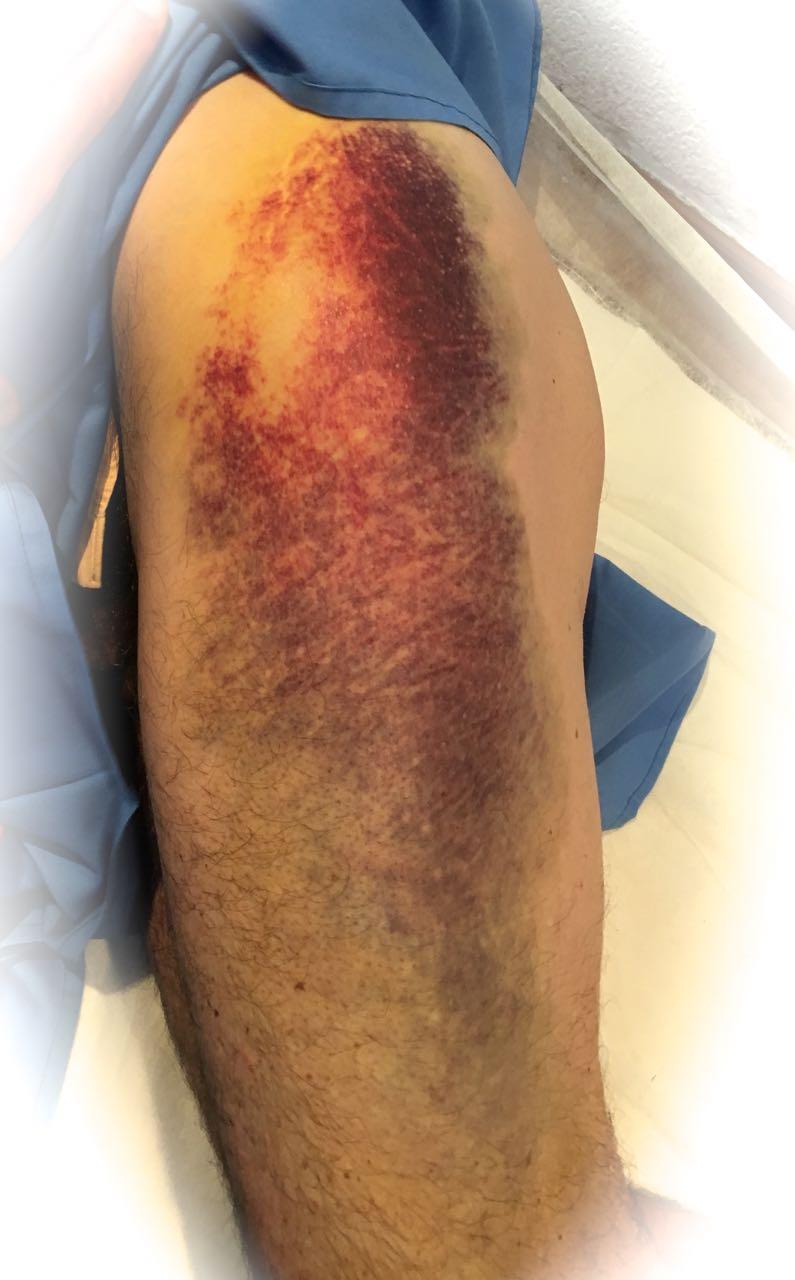lesiones articulares descompostura de fibras