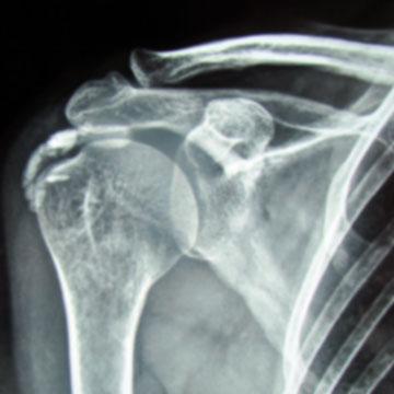 Rx Tendinitis calcificante hombro sevilla