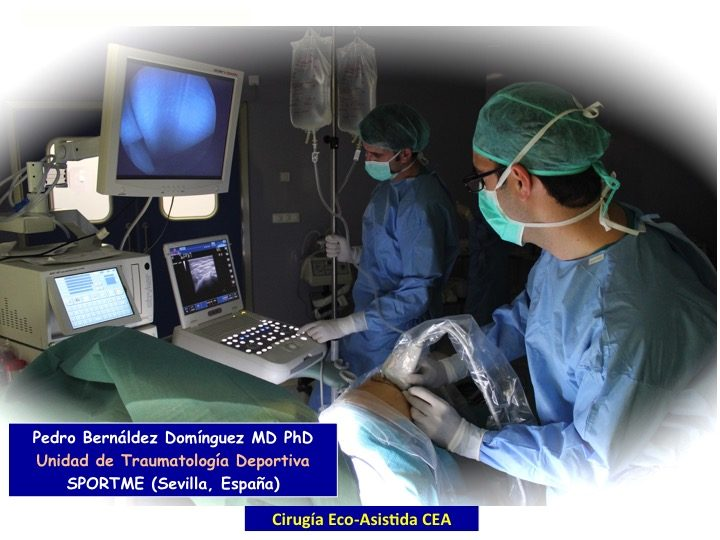 Fundamentos de la Cirugia Ecoasistida CEA