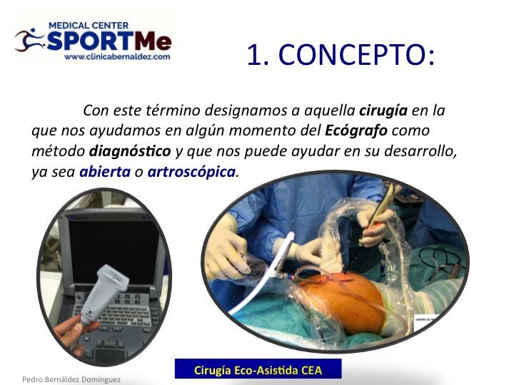 la-cirugia-eco-asistida-cea-4